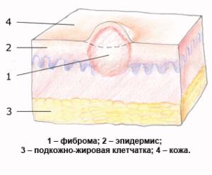 Строение фибромы
