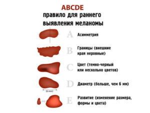 Правила для выявления меланомы