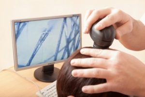 диагностика кожи головы