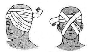 Как перевязывать глаза