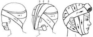 Пример наложения повязки