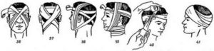 Виды повязок на голову