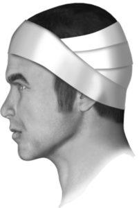Мужчина с забинтованной головой