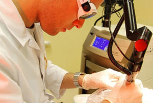 врач делает лазеротерапию