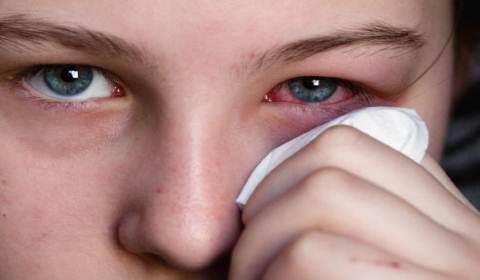Режет глаз