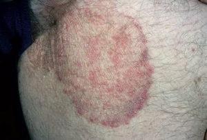 дерматомикоз на коже
