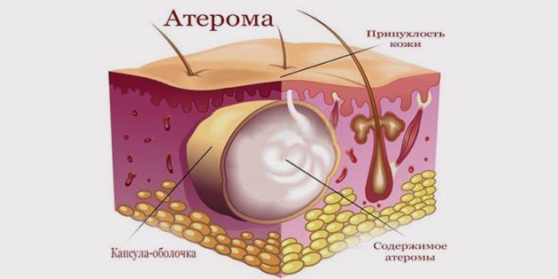 схема атеромы под кожей