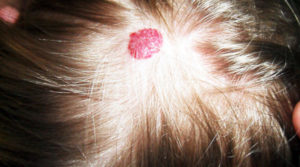 родимое пятно на коже головы