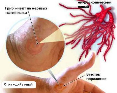 схема поражения стригущим лишаем тканей кожи