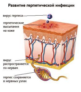 проникновение герпеса в кожу