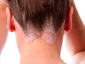 себорея на коже головы