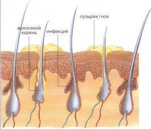 гнойники на коже головы