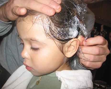 лечение вшей у ребенка