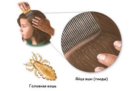 вычесывание вшей и гнид