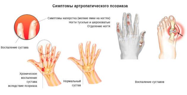 схема примера осложнения при псориазе