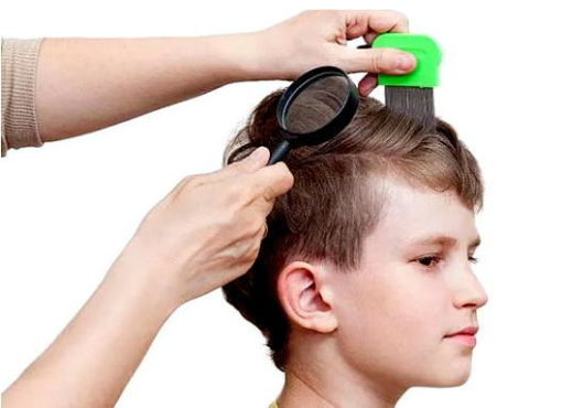мальчику вычесывают волосы