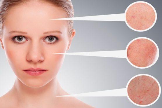 лицо девушки и симптомы дерматита