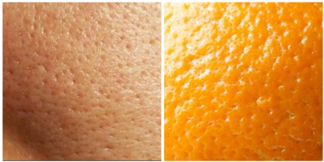 пористая кожа, похожая на апельсиновую корку