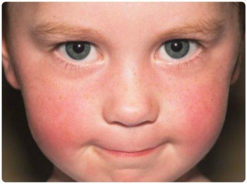 Покраснение на лице у ребенка