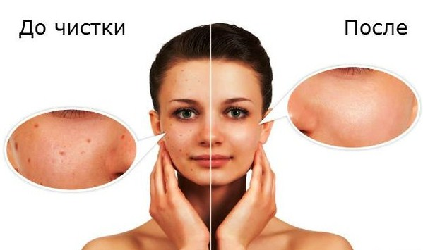 кожа до и после очищения