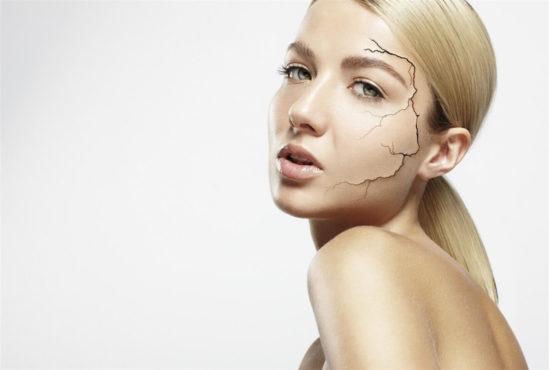 девушка с сухой кожей