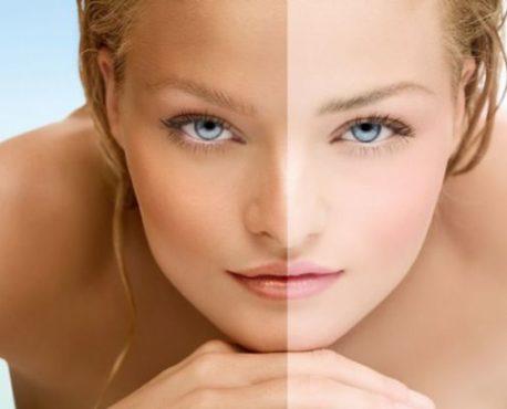 лицо девушки с результатом до и после маски