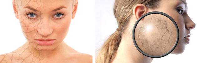 девушки с проблемной кожей лица