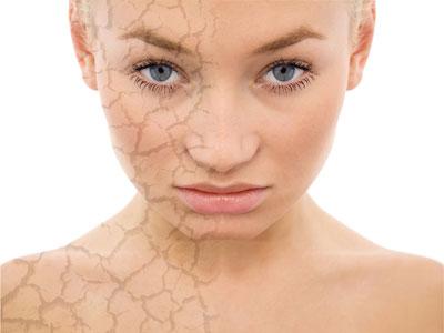 сухая потрескавшаяся кожа на лице