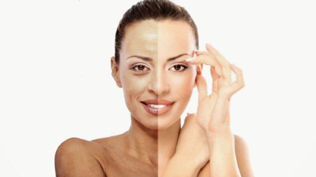 увядающая и нормальная кожа