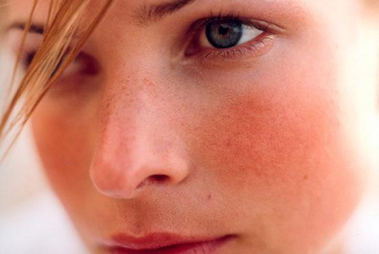 покраснение на лице у девушки