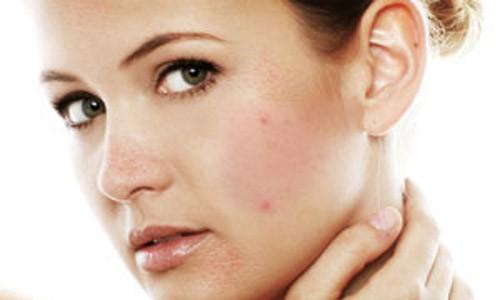 красные пятна на щеке у женщины