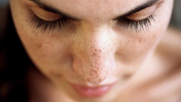 пигментные пятнышки на лице