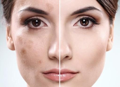 различие кожи до и после пилинга