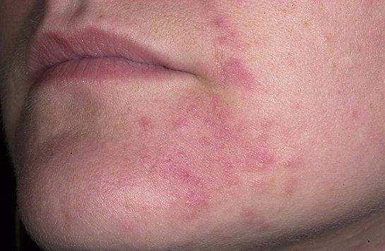 красное воспаление вокруг рта