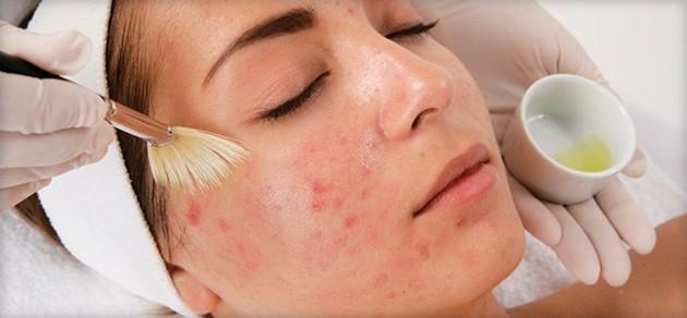 женщине наносят вещество на лицо